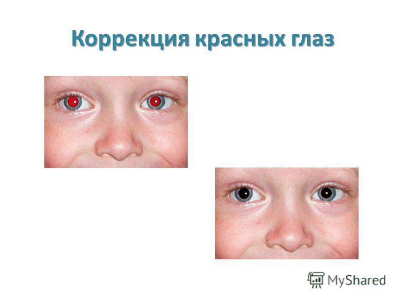 Коррекция красных глаз