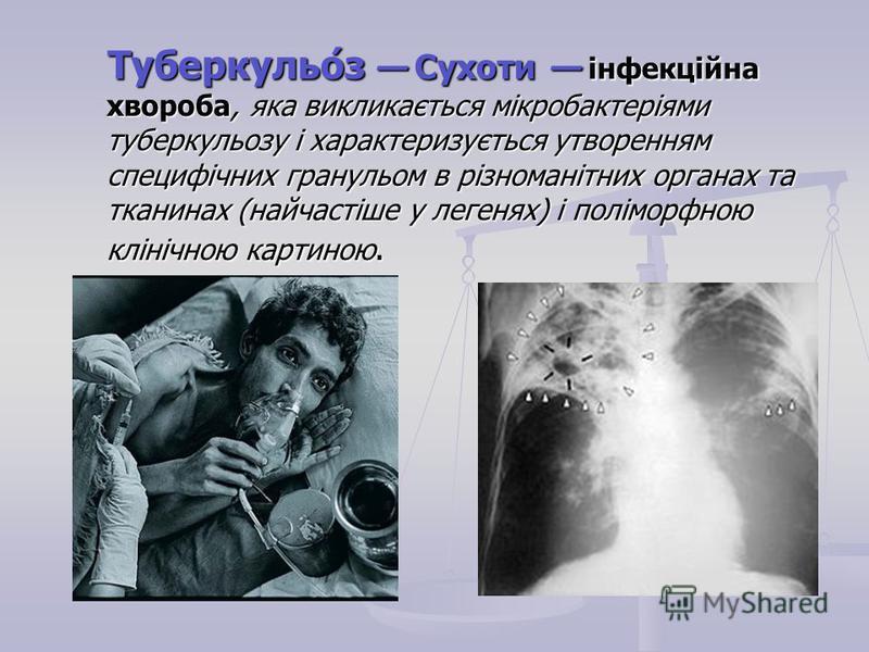 Туберкульо́з Сухоти інфекційна хвороба, яка викликається мікробактеріями туберкульозу і характеризується утворенням специфічних гранульом в різноманітних органах та тканинах (найчастіше у легенях) і поліморфною клінічною картиною. Туберкульо́з Сухоти
