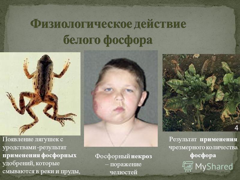 Результат применения чрезмерного количества фосфора Появление лягушек с уродствами -результат применения фосфорных удобрений, которые смываются в реки и пруды, Фосфорный некроз – поражение челюстей