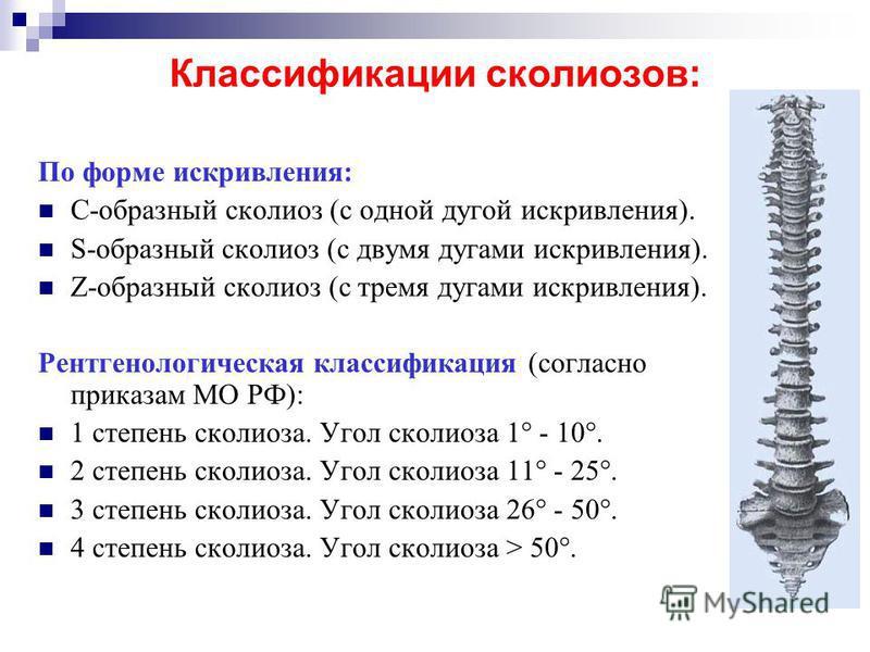 Классификации сколиозов: По форме искривления: С-образный сколиоз (с одной дугой искривления). S-образный сколиоз (с двумя дугами искривления). Z-образный сколиоз (с тремя дугами искривления). Рентгенологическая классификация (согласно приказам МО РФ
