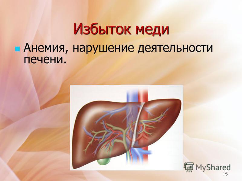 Избыток меди Анемия, нарушение деятельности печени. 15
