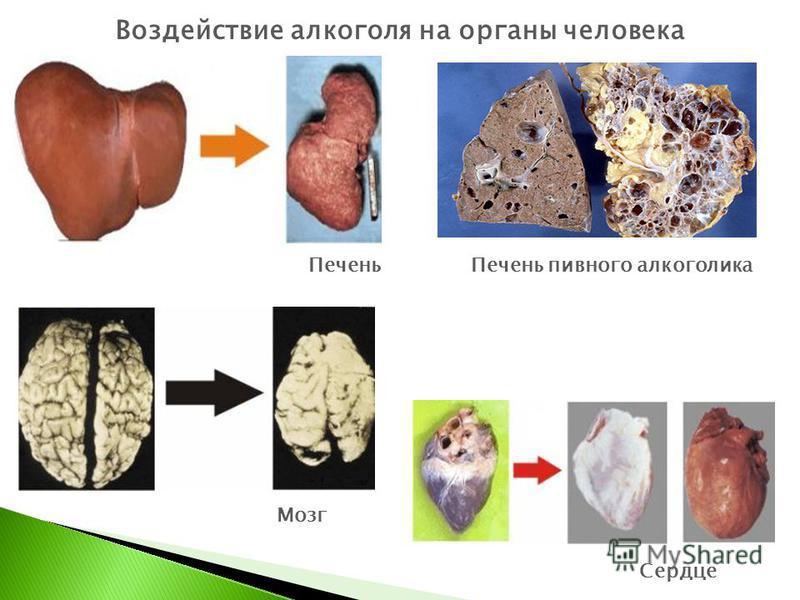 Печень пивного алкоголика Сердце Печень Воздействие алкоголя на органы человека Мозг