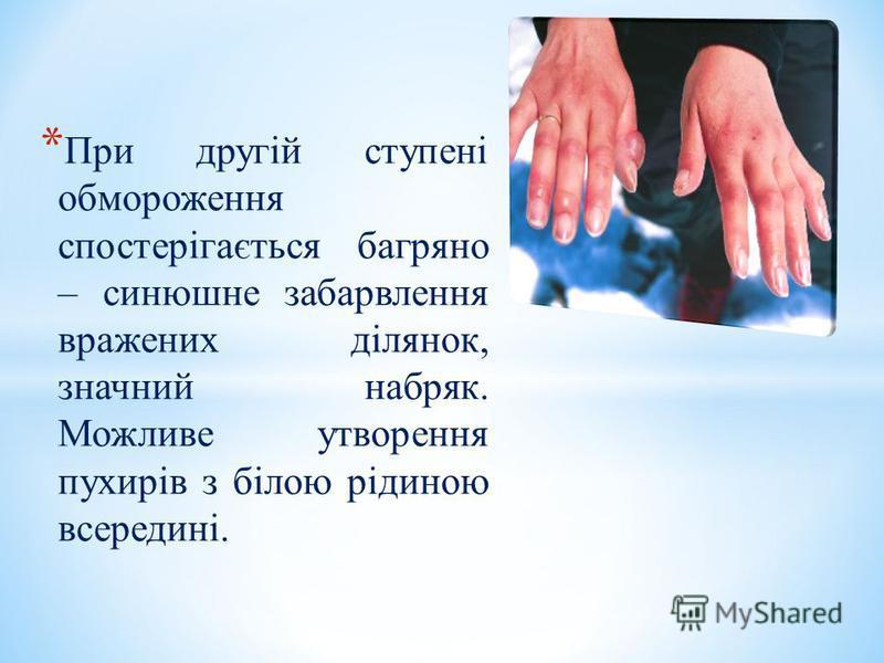 * При другій ступені обмороження спостерігається багряно – синюшне забарвлення вражених ділянок, значний набряк. Можливе утворення пухирів з білою рідиною всередині.