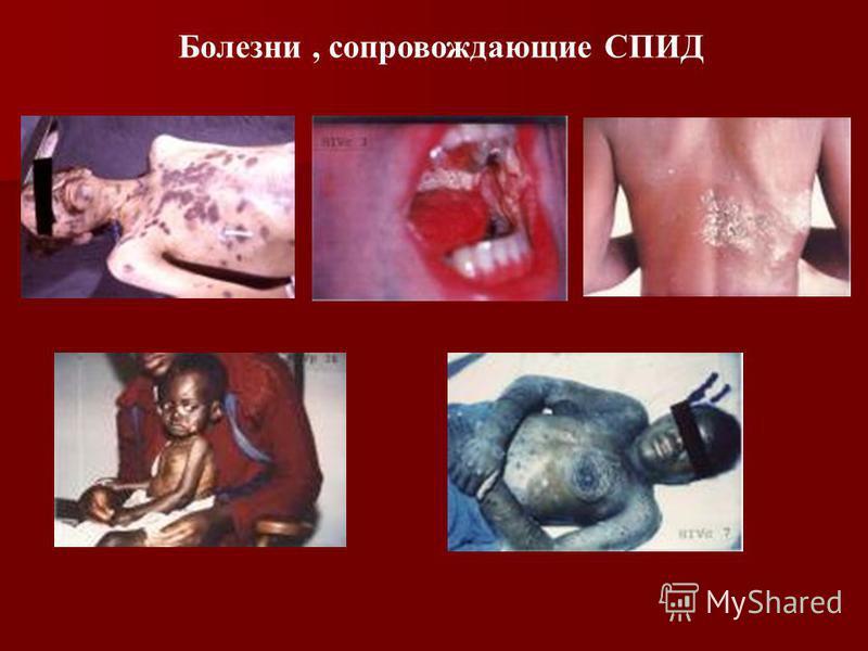 Болезни, сопровождающие СПИД