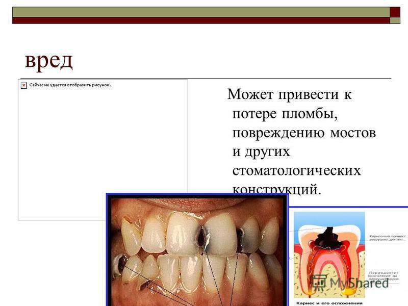 вред Может привести к потере пломбы, повреждению мостов и других стоматологических конструкций.