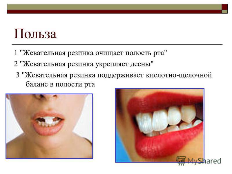 Польза 1 Жевательная резинка очищает полость рта 2 Жевательная резинка укрепляет десны 3 Жевательная резинка поддерживает кислотно-щелочной баланс в полости рта