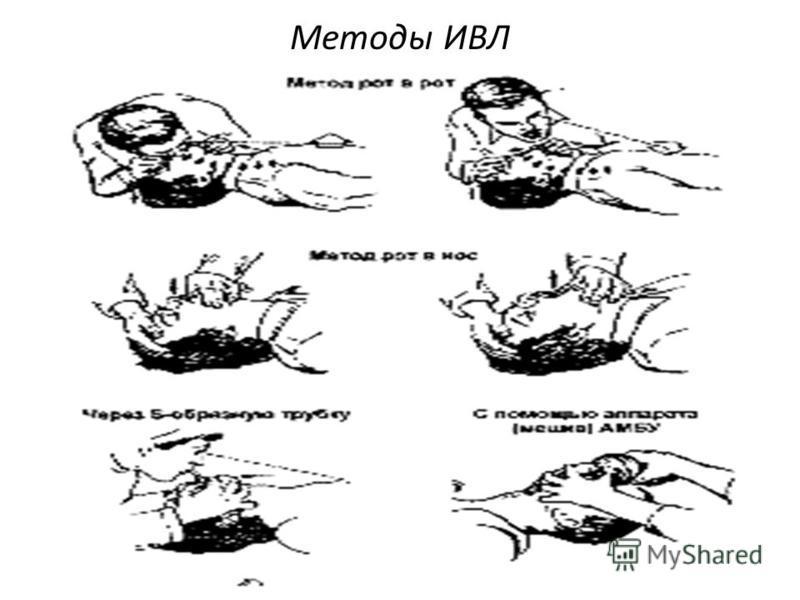 Методы ИВЛ