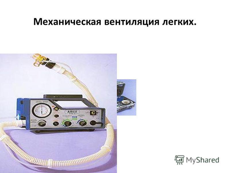 Механическая вентиляция легких.