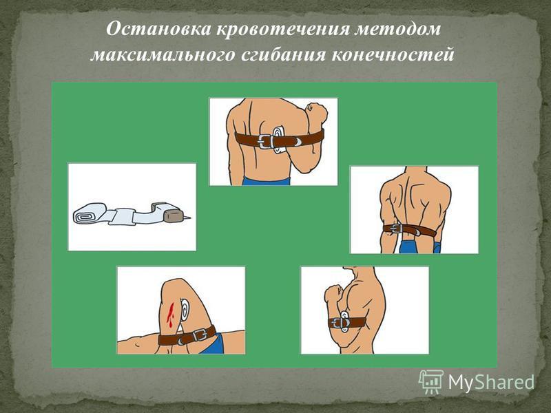 Остановка кровотечения методом максимального сгибания конечностей
