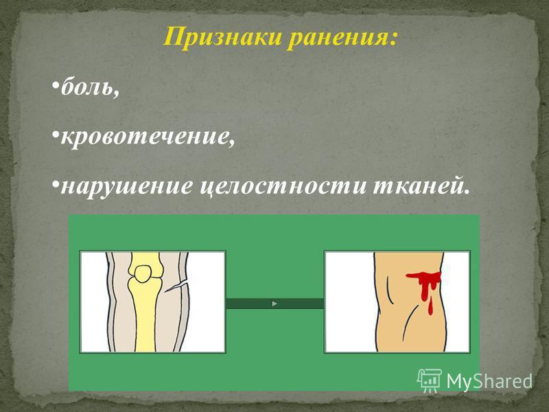 Признаки ранения: боль, кровотечение, нарушение целостности тканей.