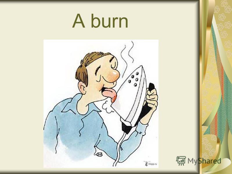 A burn