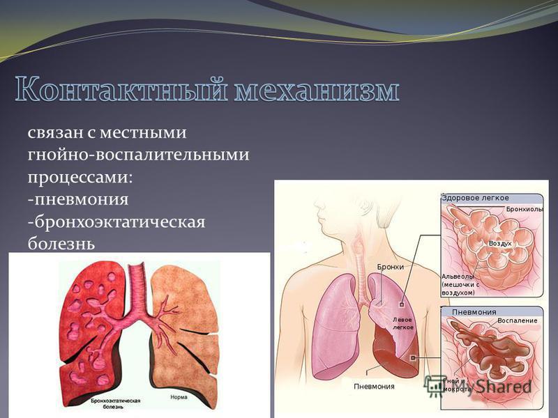 связан с местными гнойно-воспалительными процессами: -пневмония -бронхоэктатическая болезнь