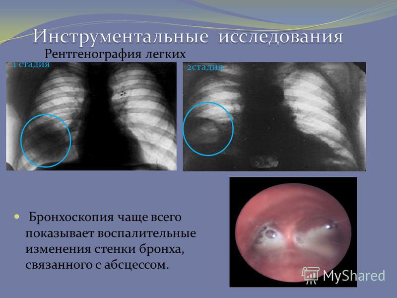 Бронхоскопия чаще всего показывает воспалительные изменения стенки бронха, связанного с абсцессом. 1 стадия 2 стадия Рентгенография легких