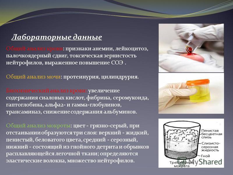 Общий анализ крови: признаки анемии, лейкоцитоз, палочкоядерный сдвиг, токсическая зернистость нейтрофилов, выраженное повышение СОЭ. Общий анализ мочи: протеинурия, цилиндрурия. Биохимический анализ крови: увеличение содержания сиаловых кислот, фибр