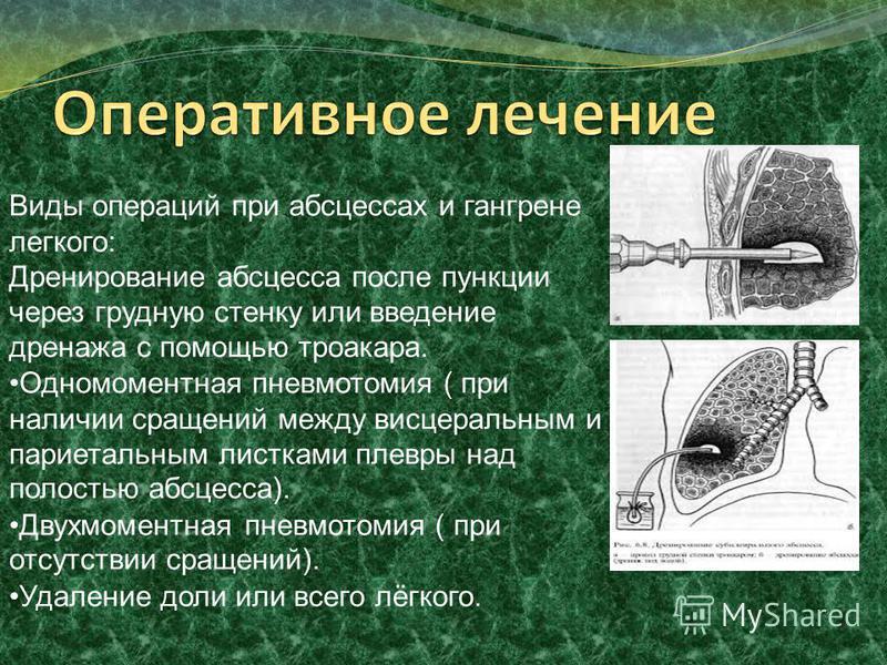 Виды операций при абсцессах и гангрене легкого: Дренирование абсцесса после пункции через грудную стенку или введение дренажа с помощью троакара. Одномоментная пневмотомия ( при наличии сращений между висцеральным и париетальным листками плевры над п