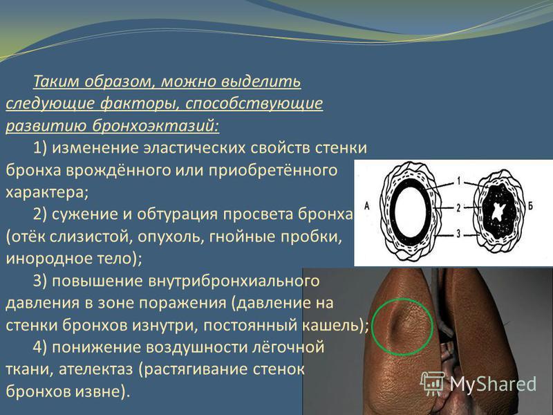 Таким образом, можно выделить следующие факторы, способствующие развитию бронхоэктазий: 1) изменение эластических свойств стенки бронха врождённого или приобретённого характера; 2) сужение и обтурация просвета бронха (отёк слизистой, опухоль, гнойные