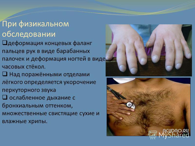 При физикальном обследовании деформация концевых фаланг пальцев рук в виде барабанных палочек и деформация ногтей в виде часовых стёкол. Над поражёнными отделами лёгкого определяется укорочение перкуторного звука ослабленное дыхание с бронхиальным от