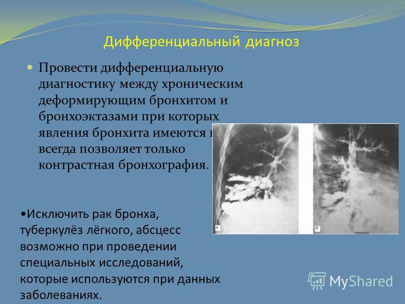 Дифференциальный диагноз Провести дифференциальную диагностику между хроническим деформирующим бронхитом и бронхоэктазами при которых явления бронхита имеются почти всегда позволяет только контрастная бронхография. Исключить рак бронха, туберкулёз лё