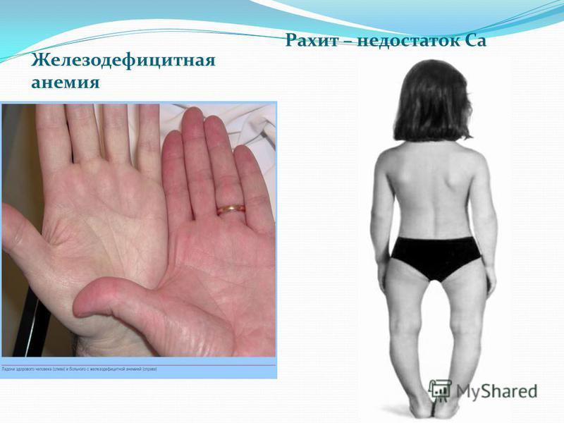 Железодефицитная анемия Рахит – недостаток Са