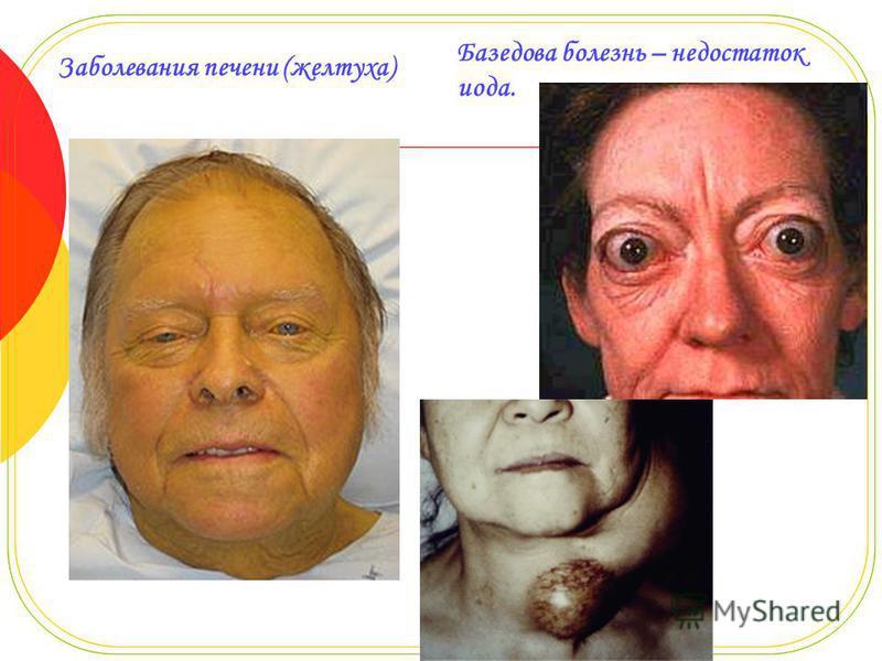 Заболевания печени (желтуха) Базедова болезнь – недостаток иода.