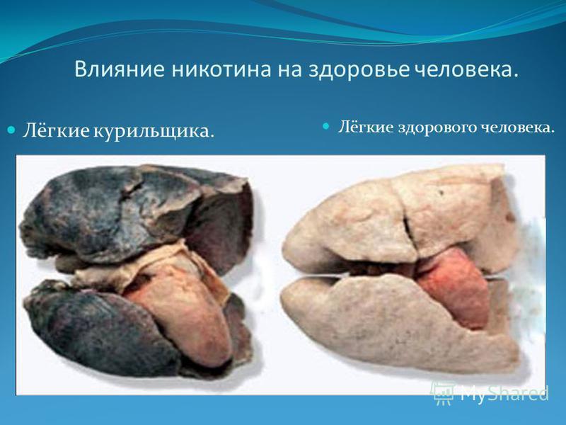 Влияние никотина на здоровье человека. Лёгкие курильщика. Лёгкие здорового человека.