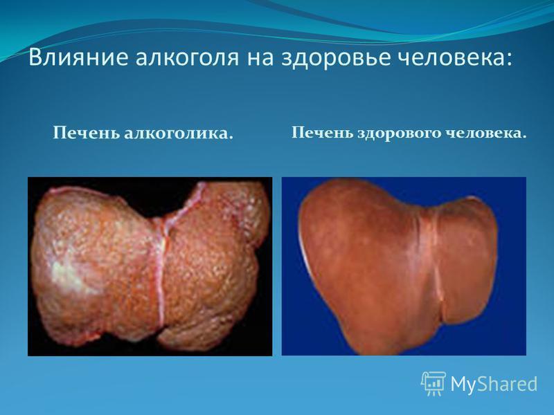 Влияние алкоголя на здоровье человека: Печень алкоголика. Печень здорового человека.