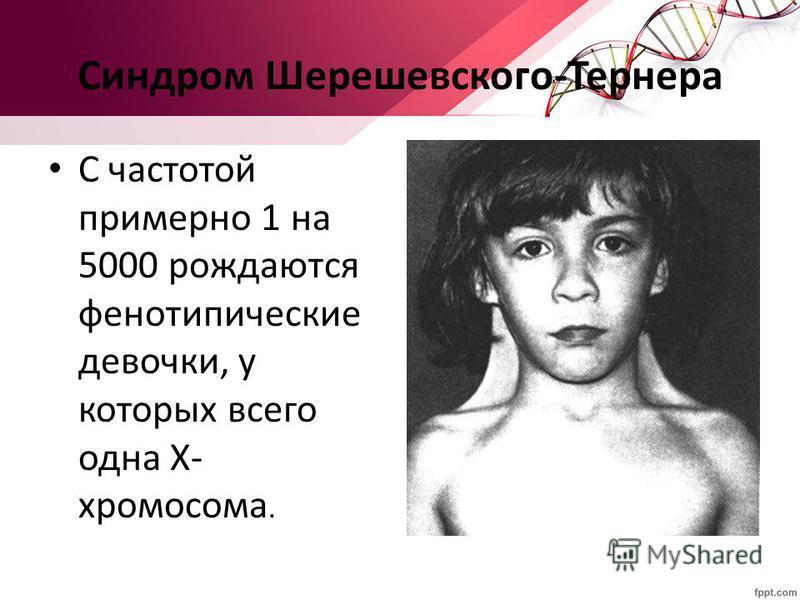 Синдром Шерешевского-Тернера С частотой примерно 1 на 5000 рождаются фенотипические девочки, у которых всего одна Х- хромосома.