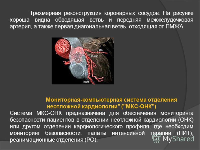 Трехмерная реконструкция коронарных сосудов. На рисунке хороша видна обводящая ветвь и передняя межжелудочковая артерия, а также первая диагональная ветвь, отходящая от ПМЖА Мониторная-компьютерная система отделения неотложной кардиологии
