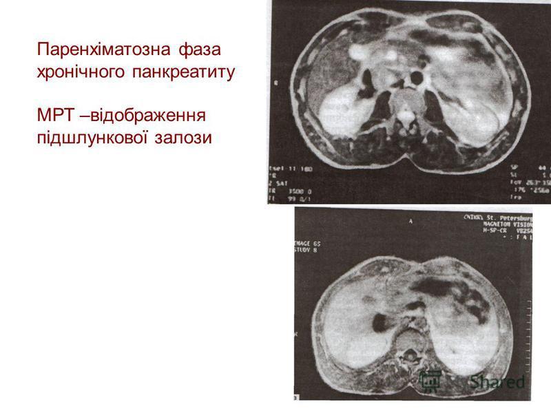 Ультразвукові Ультразвукові ознаки -розміри залози не збільшені -50% межа залози нечітка -ехогенність залози підвищена -структура неоднорідна, з наявністю ділянок розмірами 2-4 мм зниженої і підвищеної ехогенності -10% помірне розширення панкреатично