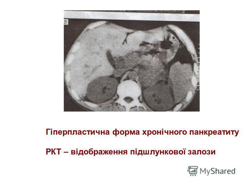 Ультразвукові ознаки -70% дифузне збільшення підшлункової залози, 30% - локальне збільшення,частіше голівки -межа задньої поверхні залози нечітка -ехогеність знижена нерівномірно -структура неоднорідна (поєднання ділянок зниженої і підвищеної ехогенн