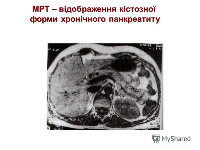 Гіперпластична форма хронічного панкреатиту РКТ – відображення підшлункової залози