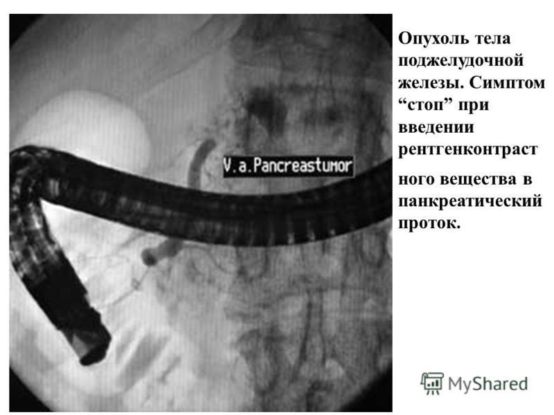 Применение позитронной эмиссионной томографии при раке поджедлудочной железы. Множественные очаги гиперфиксации 18F-ФДГ у пациента с аденокарциномой головки поджелудочной железы и метастазами опухоли (фронтальные срезы). Слева. Срез на уровне головки