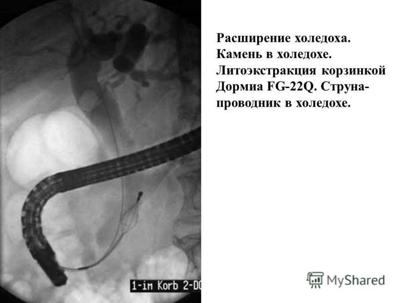 Признаки хронического панкреатита: расширение панкреатическ ого протока и ветвей 2-3-го порядка, неровность контуров протока и ветвей.