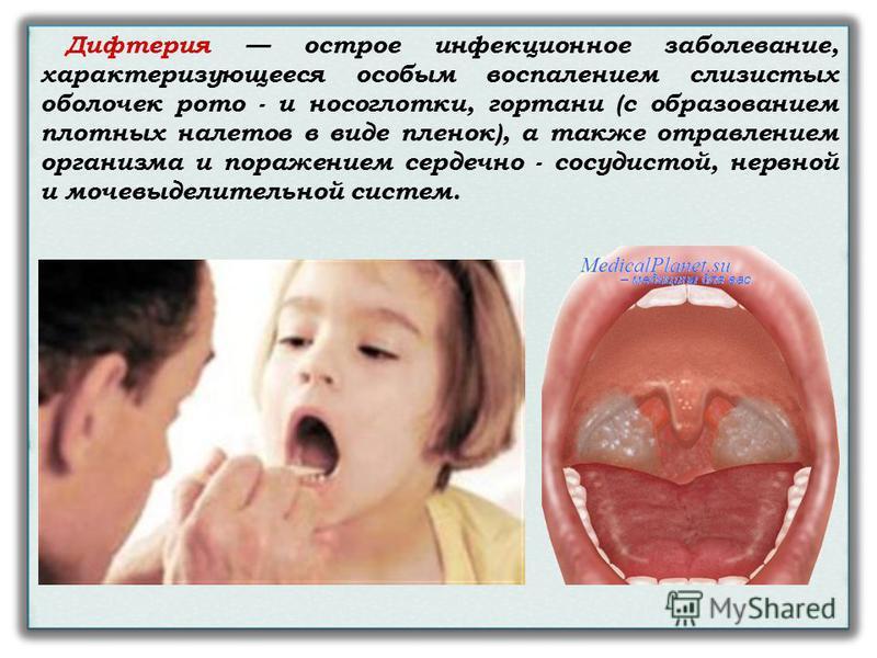 Дифтерия острое инфекционное заболевание, характеризующееся особым воспалением слизистых оболочек рото - и носоглотки, гортани (с образованием плотных налетов в виде пленок), а также отравлением организма и поражением сердечно - сосудистой, нервной и