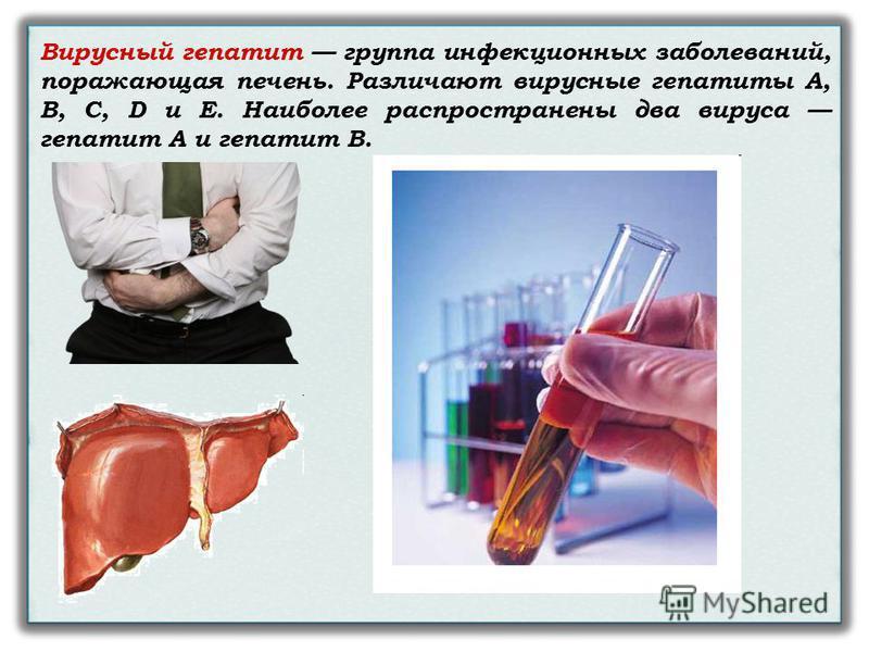 Вирусный гепатит группа инфекционных заболеваний, поражающая печень. Различают вирусные гепатиты А, В, С, D и Е. Наиболее распространены два вируса гепатит А и гепатит В.