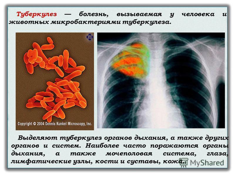 Туберкулез болезнь, вызываемая у человека и животных микробактериями туберкулеза. Выделяют туберкулез органов дыхания, а также других органов и систем. Наиболее часто поражаются органы дыхания, а также мочеполовая система, глаза, лимфатические узлы,