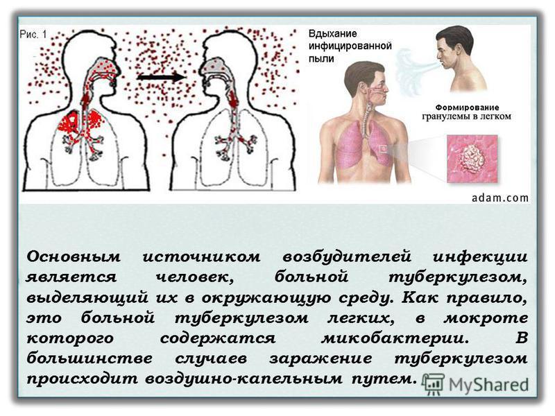 Основным источником возбудителей инфекции является человек, больной туберкулезом, выделяющий их в окружающую среду. Как правило, это больной туберкулезом легких, в мокроте которого содержатся микобактерии. В большинстве случаев заражение туберкулезом