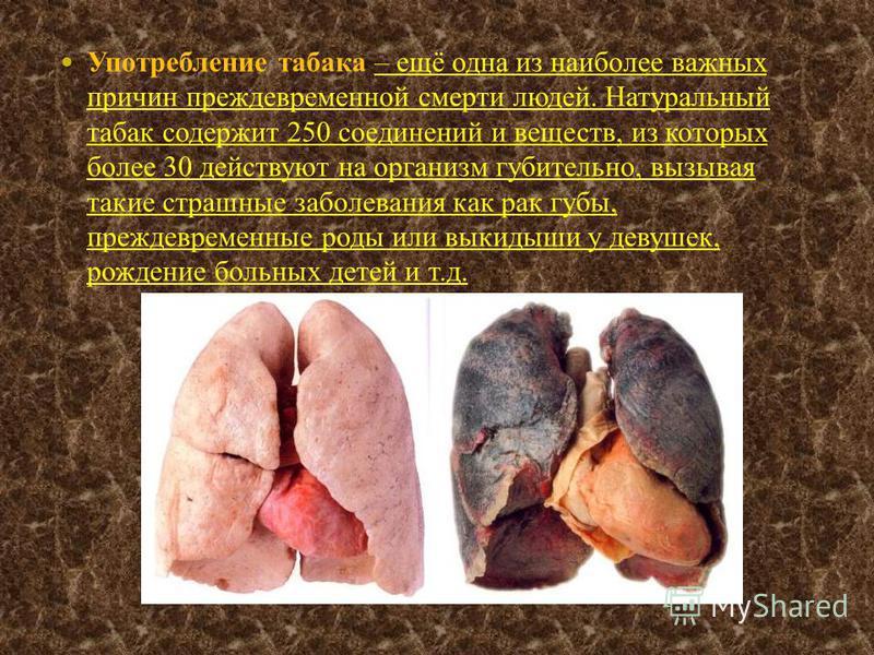 Употребление табака – ещё одна из наиболее важных причин преждевременной смерти людей. Натуральный табак содержит 250 соединений и веществ, из которых более 30 действуют на организм губительно, вызывая такие страшные заболевания как рак губы, преждев