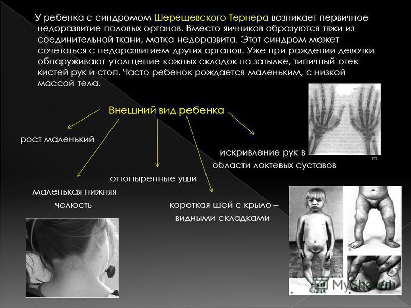 У ребенка с синдромом Шерешевского-Тернера возникает первичное недоразвитие половых органов. Вместо яичников образуются тяжи из соединительной ткани, матка недоразвита. Этот синдром может сочетаться с недоразвитием других органов. Уже при рождении де