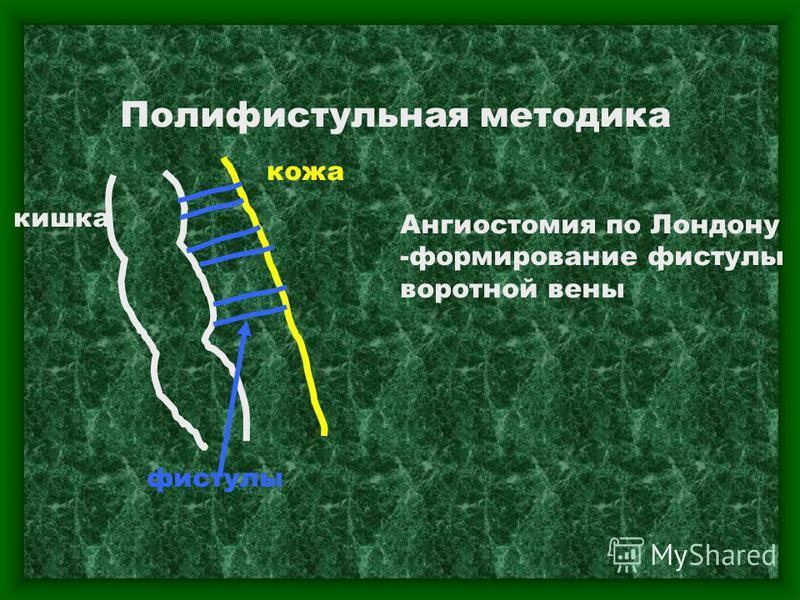 Полифистульная методика кишка кожа фистулы Ангиостомия по Лондону -формирование фистулы воротной вены