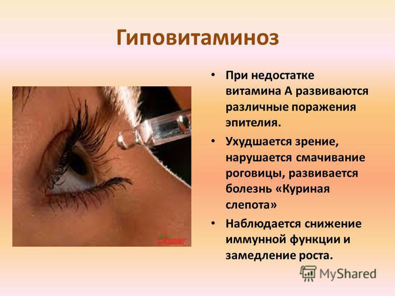 Гиповитаминоз При недостатке витамина A развиваются различные поражения эпителия. Ухудшается зрение, нарушается смачивание роговицы, развивается болезнь «Куриная слепота» Наблюдается снижение иммунной функции и замедление роста.