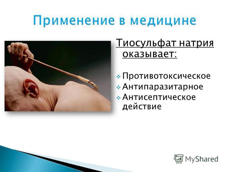 Тиосульфат натрия оказывает: Противотоксическое Антипаразитарное Антисептическое действие