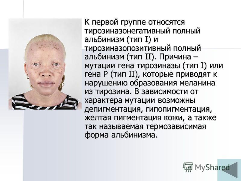 К первой группе относятся тирозиназонегативный полный альбинизм (тип I) и тирозиназопозитивный полный альбинизм (тип II). Причина – мутации гена тирозиназы (тип I) или гена Р (тип II), которые приводят к нарушению образования меланина из тирозина. В