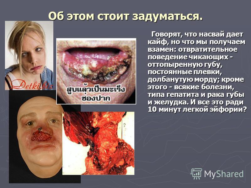 Об этом стоит задуматься. Говорят, что насвай дает кайф, но что мы получаем взамен: отвратительное поведение чикающих - оттопыренную губу, постоянные плевки, долбанутую морду; кроме этого - всякие болезни, типа гепатита и рака губы и желудка. И все э