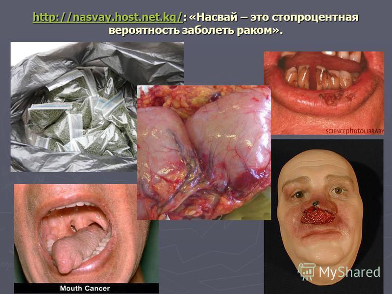 http://nasvay.host.net.kg/http://nasvay.host.net.kg/: «Насвай – это стопроцентная вероятность заболеть раком». http://nasvay.host.net.kg/