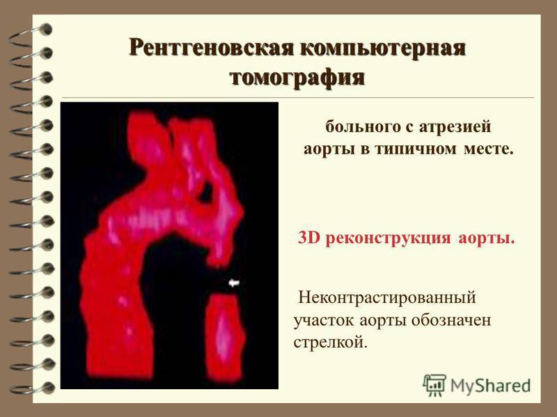 Рентгеновская компьютерная томография 3D реконструкция аорты. Неконтрастированиеный участок аорты обозначен стрелкой. больнего с атрезией аорты в типичном месте.