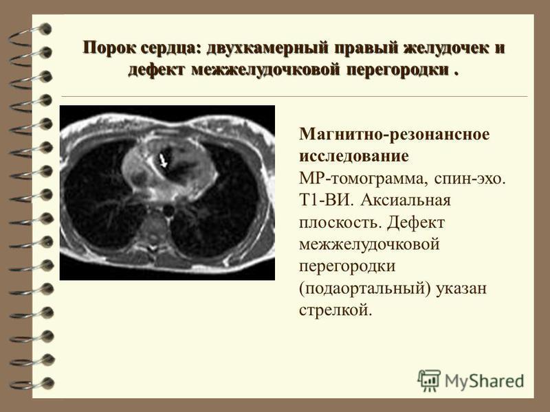 Порок сердца: двухкамерный правый желудочек и дефект межжелудочковой перегородки. Магнитно-резонансное исследование МР-томограмма, спин-эхо. Т1-ВИ. Аксиальная плоскость. Дефект межжелудочковой перегородки (подаортальный) указан стрелкой.
