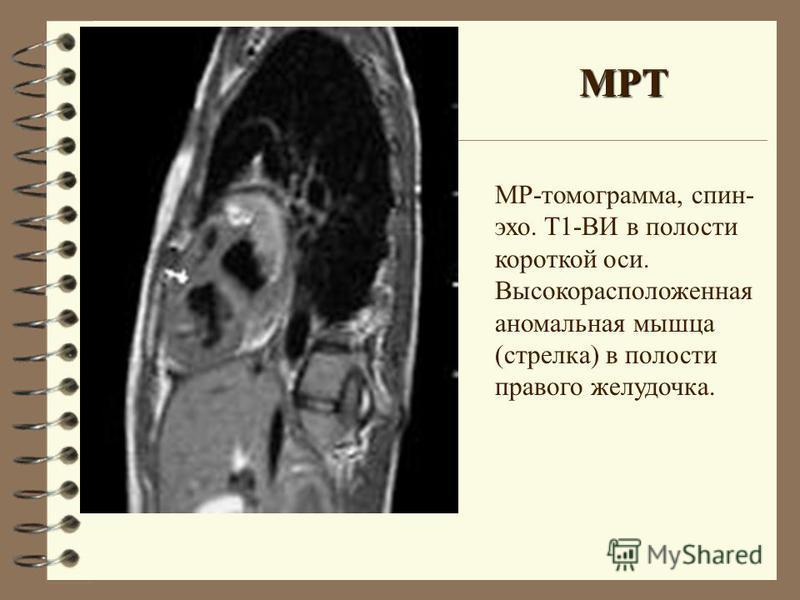 МР-томограмма, спин- эхо. Т1-ВИ в полости короткой оси. Высокорасположенная аномальная мышца (стрелка) в полости правого желудочка. МРТ