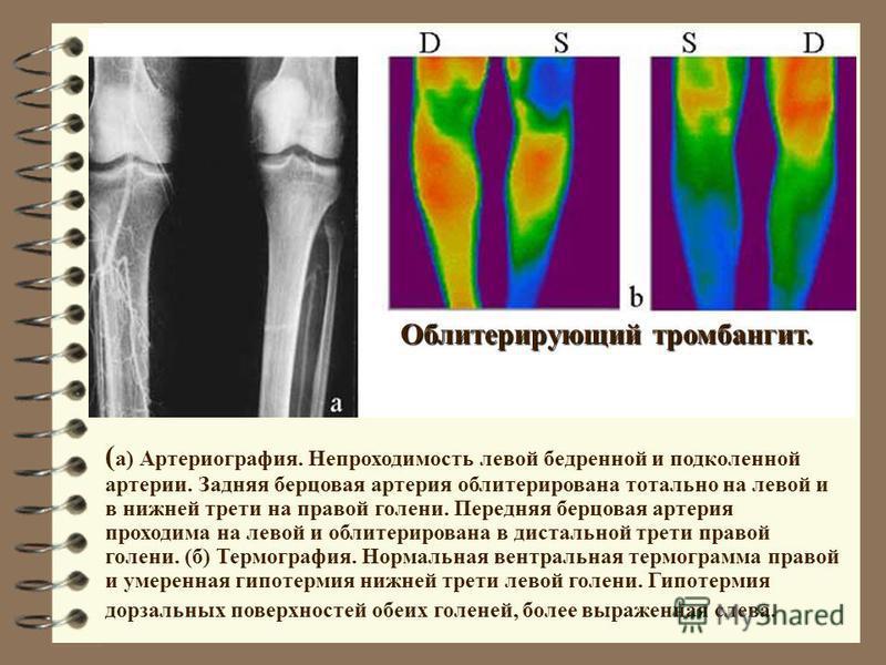 Облитерирующий тромбангит. ( а) Артериография. Непроходимость левой бедренной и подколенной артерии. Задняя берцовая артерия облитерирована тотально на левой и в нижней трети на правой голени. Передняя берцовая артерия проходима на левой и облитериро