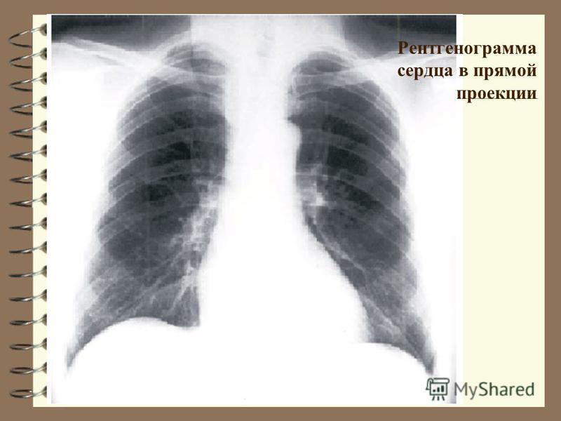 Рентгенограмма сердца в прямой проекции